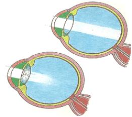 In alto l'occhio normale. In basso l'occhio malato di cataratta. Nel primo caso la luce entra regolarmente, nel secondo non riesce a passare.