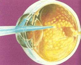 La retina malata provoca la visione di lampi di luce. Non bisogna mai sottovalutare tali sensazioni visive.